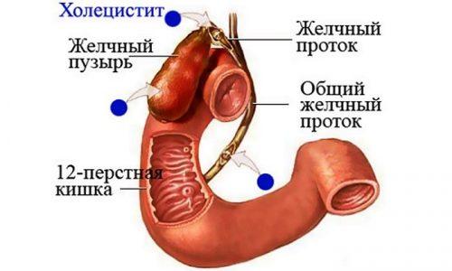 Холецистит - заболевание желудочно-кишечного тракта, сопровождающееся воспалительными процессами в желчном пузыре
