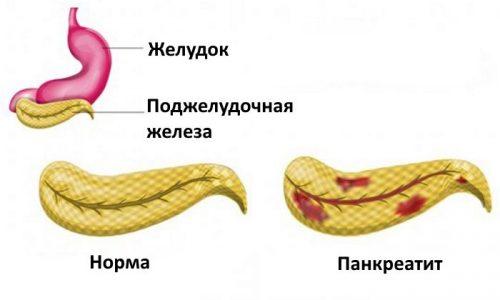 Поджелудочная железа отвечает за выработку ферментов, которые необходимы для расщепления продуктов питания